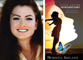Rebecca Ireland Life After Thyroidectomy